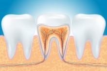原因不明の歯の痛み