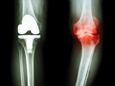 膝 腫れ 原因